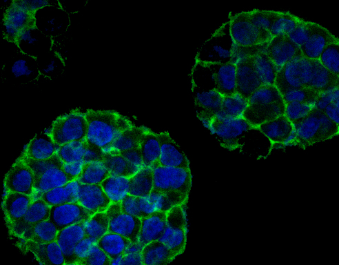 3-D printed tumor cells will imitate cancer cells to aid research