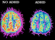 Brain abnormality linked to ADHD identified
