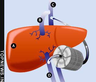 artificial liver machine