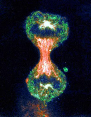 cancer cells in stomach. Cervical Cancer Cell