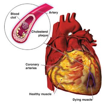 [Image: Cardiovascular.Disease.jpg]
