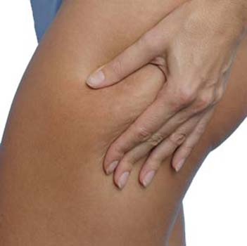 How to Treat Cellulite at Home