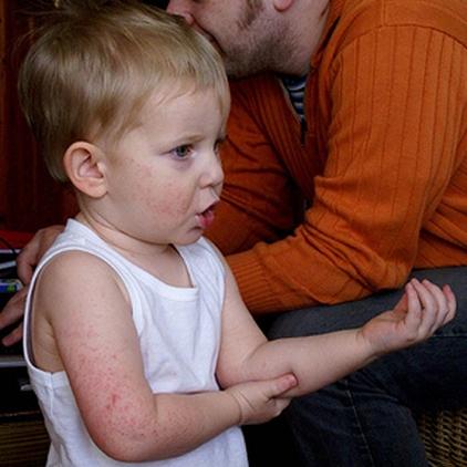 child eczema symptoms