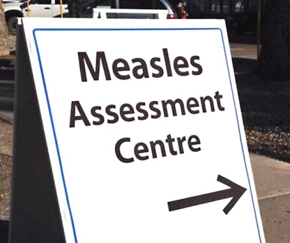 Measles in Canada is spreading