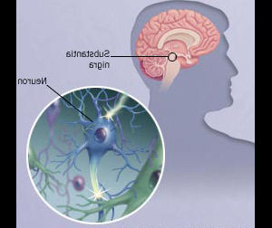 New medicine for short term memory loss