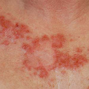 Gym may be the most common place to pick skin infections ...