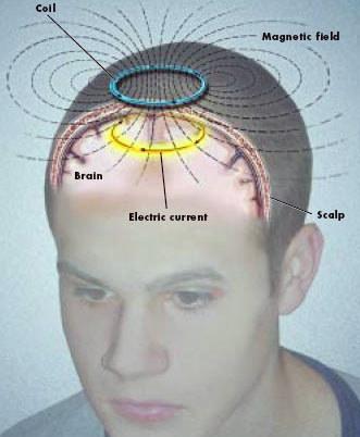 [Image: brain-scan.jpg]
