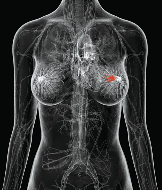 Poverty linked to breast cancer gene damage
