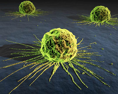China and India stricken by the growing cancer numbers