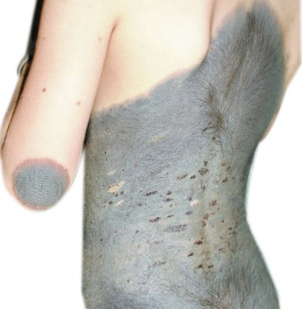 Dry Discoloured Patch Skin