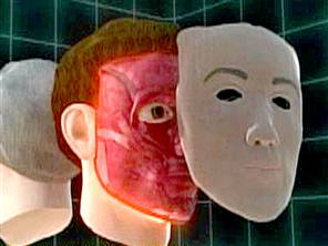 Face Transplant Patient Doing Well