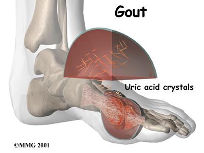 gout Gout (arthritis) :