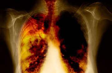 Racial Discrimination in Treatment of Lung Cancer