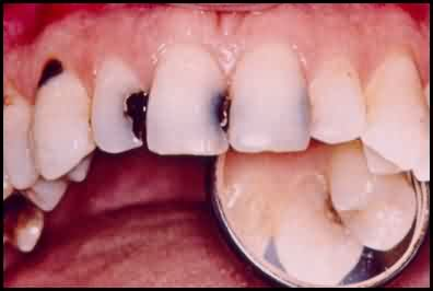 teeth decay pictures