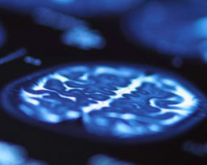 Alzheimer's gene 'starts' changing brain patterns early in life