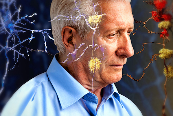 Alzheimer's associated with defective brain cells spreading disease: Study