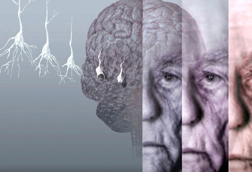 Diabetes may be linked to brain tangles, separate from Alzheimer's disease