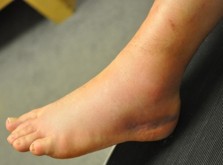 Physiotherapy not beneficial for ankle sprains, says study