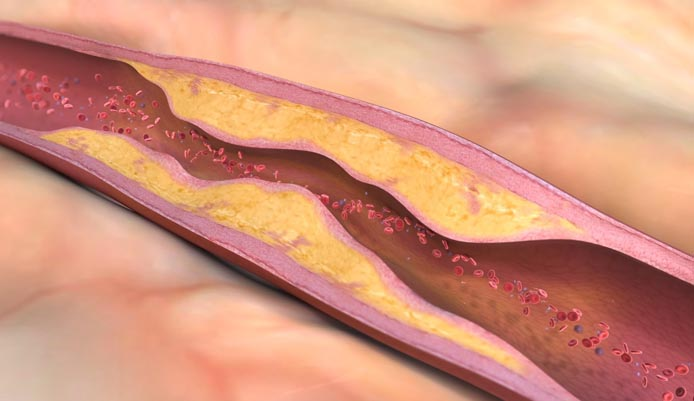 Researchers discover new method to diagnose atherosclerosis