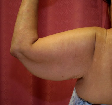 'Bingo Wings': a cure for saggy underarm skin launched ...
