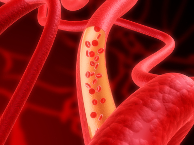 Stem cells from fat used to create blood vessels in lab
