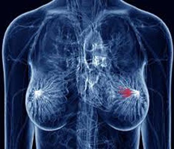 Long-living breast stem cells may cause cancer