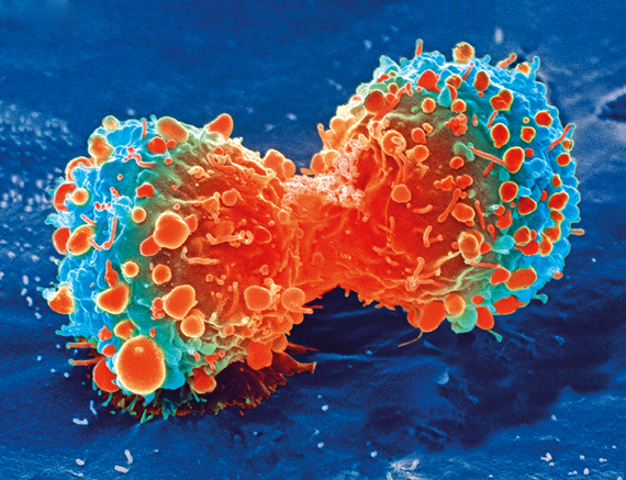 New cell study might help fight cancer