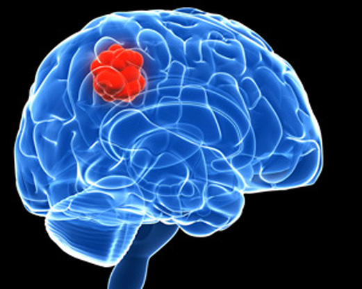 Survivors of childhood brain tumours have more fat
