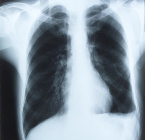 Stem cell therapy can help repair damaged lungs