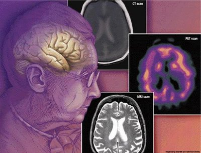 New risk factor for second-most-common cause of early dementia onset found