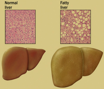 Don't blame fructose for non-alcoholic fatty liver: Study