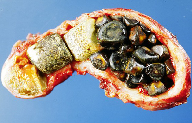 Doctors successfully remove 838 gallstones from patient's gallbladder