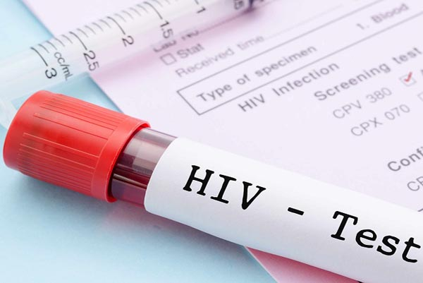 Parasitic worm infection may increase HIV risk