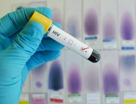 Australian scientists closer to creating HIV vaccine