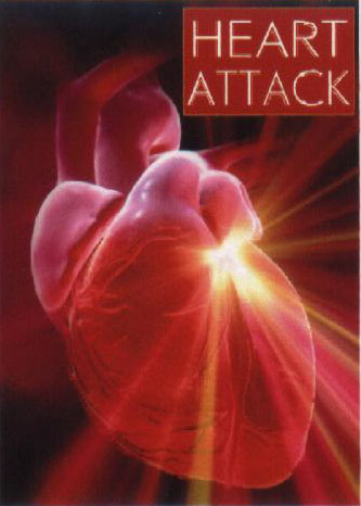 heart attack pictures. Heart Attack middot; Health