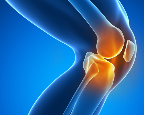 Knee replacement isn't the only surgical option for patients with knee arthritis