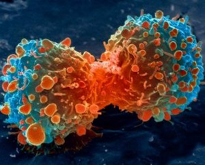 New drug to generate self-destruct process in lung cancer cells