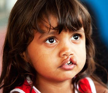 Operation Smile: Assam cleft-lip centre reaches out to neighbours