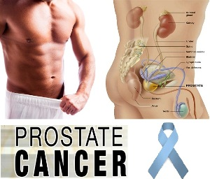 Prostate most common form of cancer among men