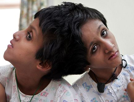 Conjoined twins in Bihar critically ill