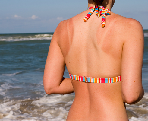 This Summer, keep sunburn at bay