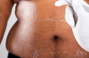 How weight-loss surgery cures diabetes revealed