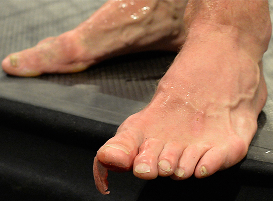 Wrongly diagnosed foot injury may cause arthritis, chronic pain