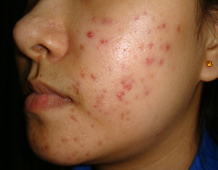 Researchers get skin virus to knock out acne