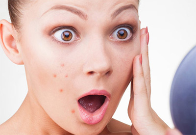 People with acne are protected against aging: Study