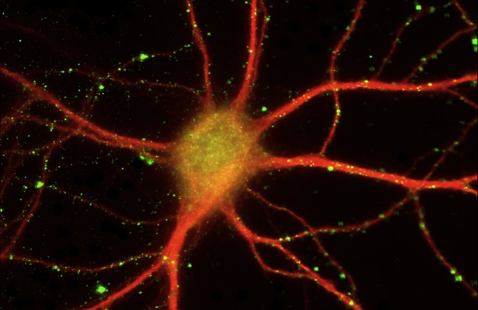 Potential new drug compound for Alzheimer''s disease discovered