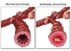 asthma symptoms Aerobic exercise may improve asthma symptoms