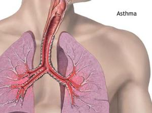 Asthma patients have garden mould growing in lungs