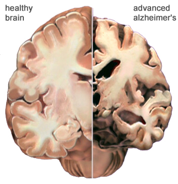 New method to cleanse brain of Alzheimer''s plaques developed