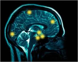 'Facebook neurons' could shed light on brain''s centre of higher learning